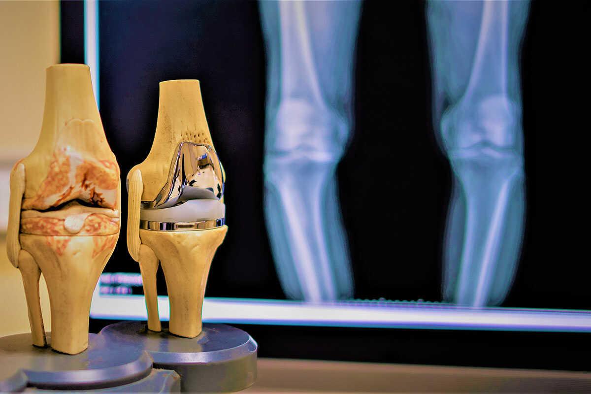 DR. MARKUS MAURMAIR | Facharzt für Orthopädie & orthopädische Chirurgie